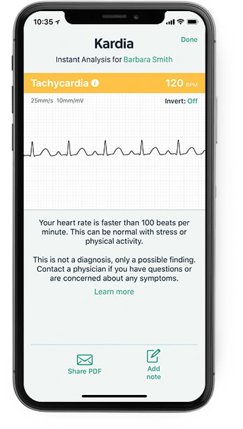 iPhone showing the Kardia app with a tachycardia result